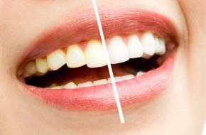 wybielanie-zębów